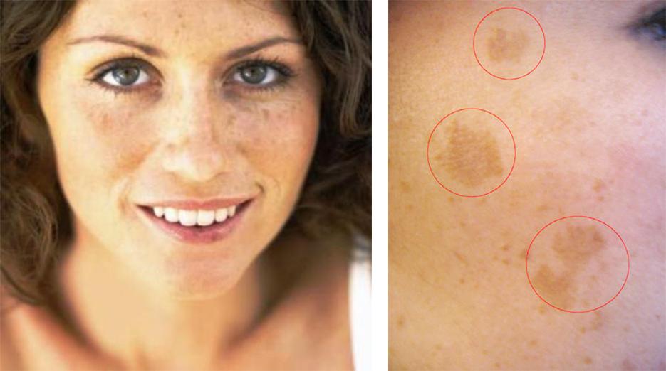 Macchie scure su graffio della pelle